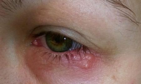How to Get Rid Of Hsv 1 Beautiful Eye Herpes Symptoms and Types